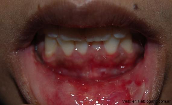 Piel de Cristal Epidermolisis bullosa