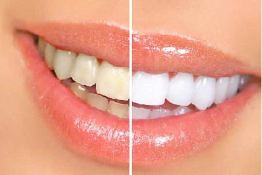 Tratamientos-para-blanquear-dientes